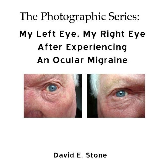 Cover of My Left Eye_My Right Eye_After Experiencing An Ocular Migraine